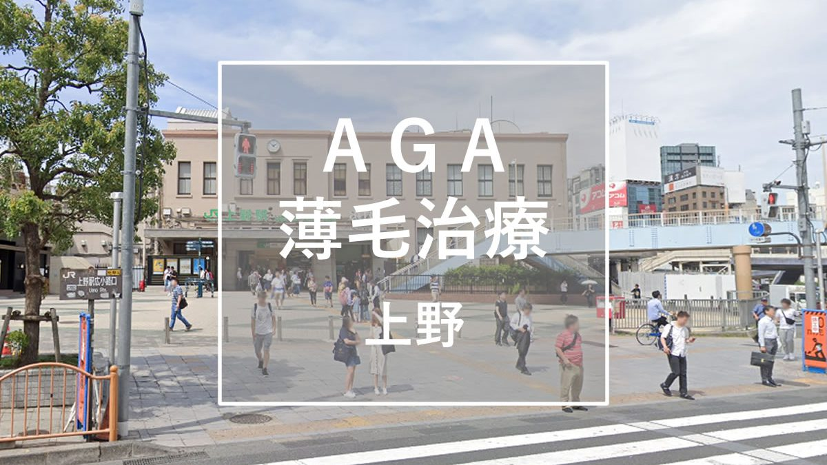 AGA・薄毛治療 上野